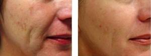before and after skin rejuvenation methods